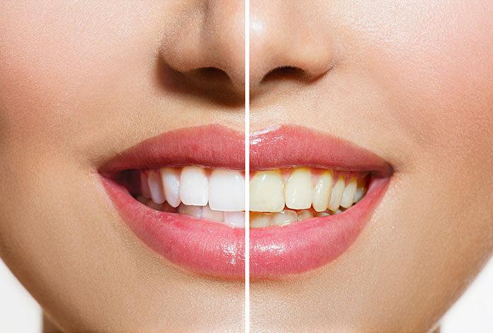 Śnieżna biel zębów- którą metodę wybrać?